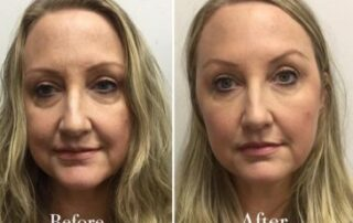 before after facelift image