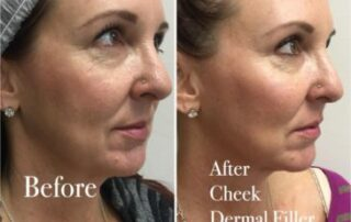 before after cheekfiller image