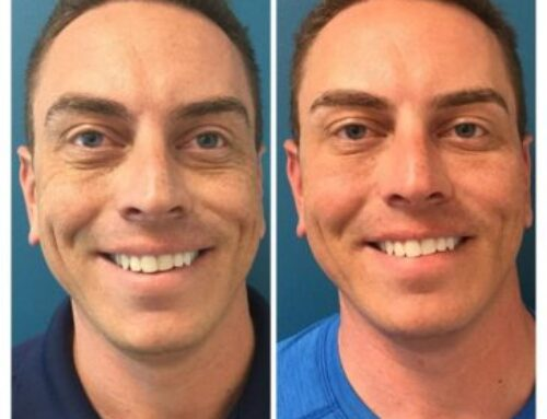 Before and After: Male Facial Rejuvenation