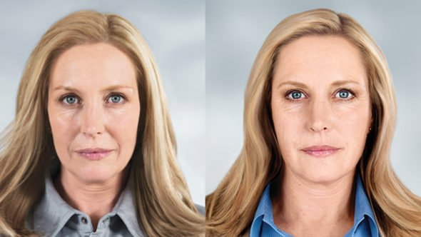 before after image face belotero