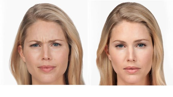 before after image face botox