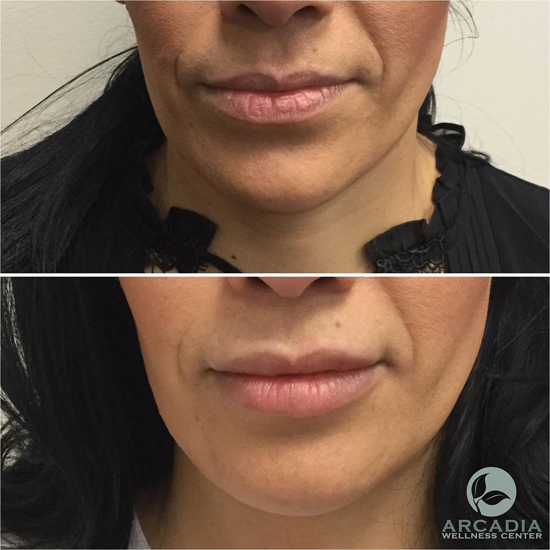 before after image mouth 3359