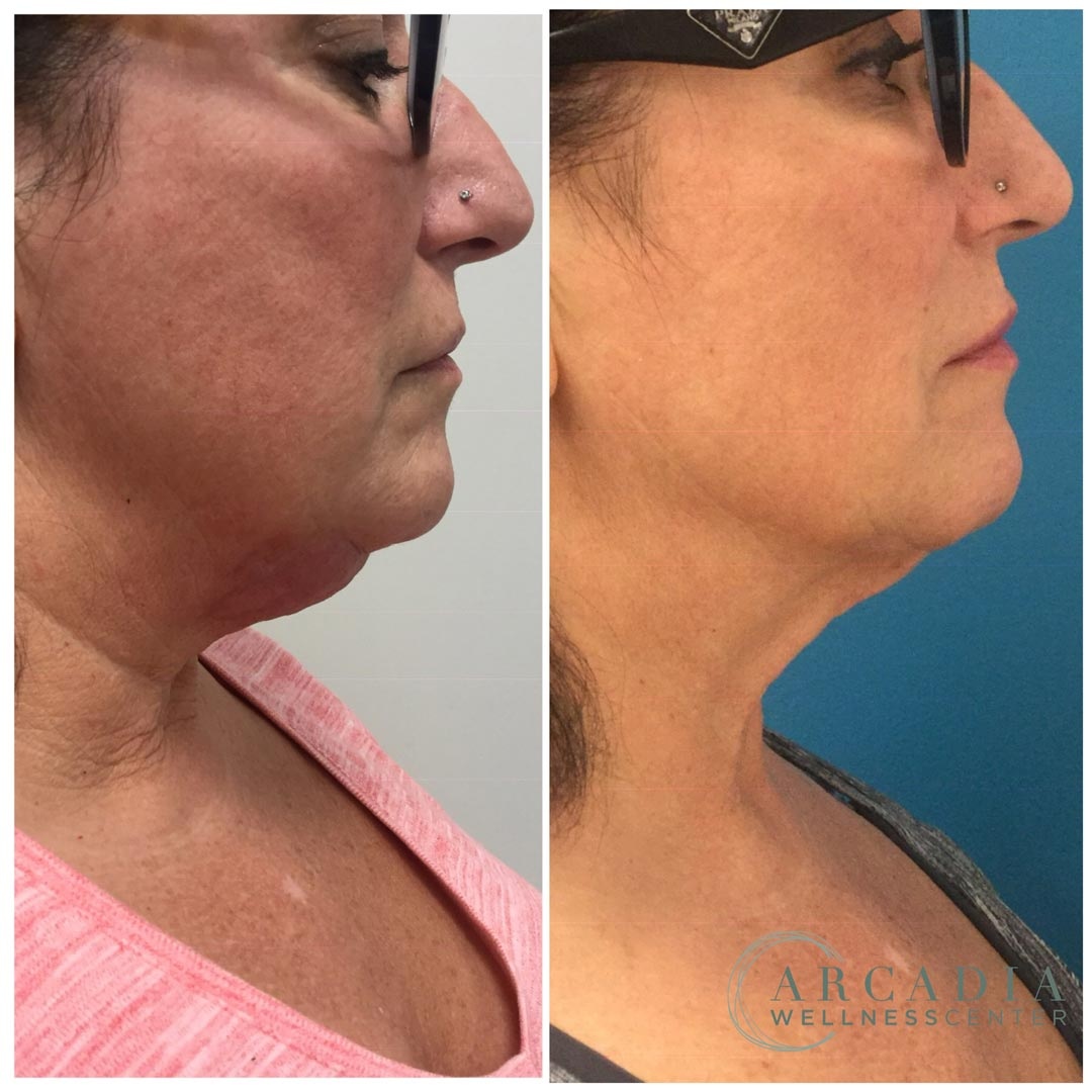before after image neck 1541