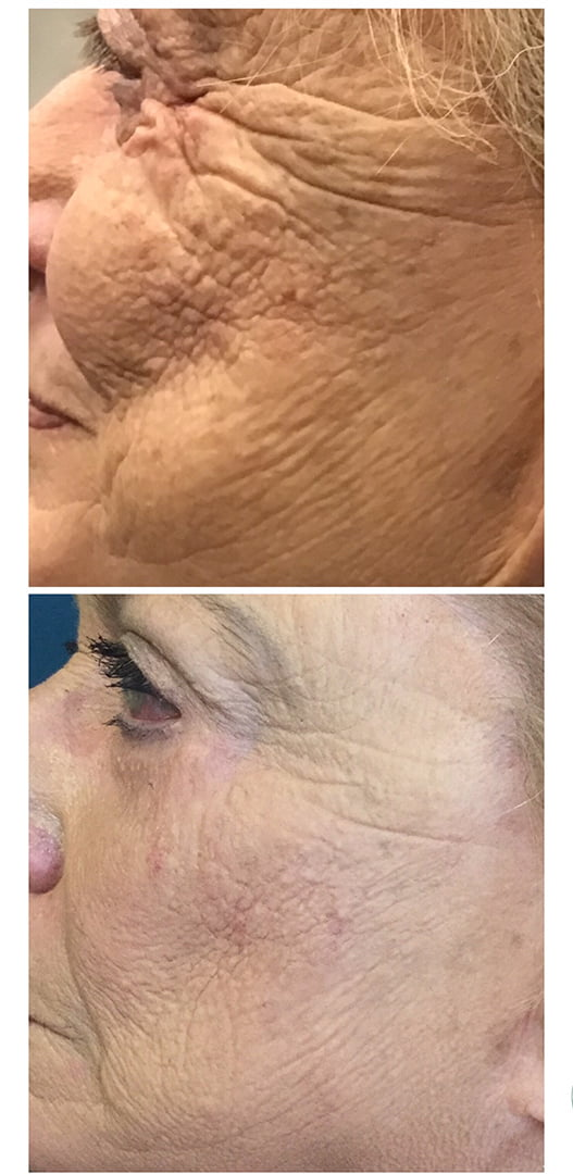 before after image cheek 1458