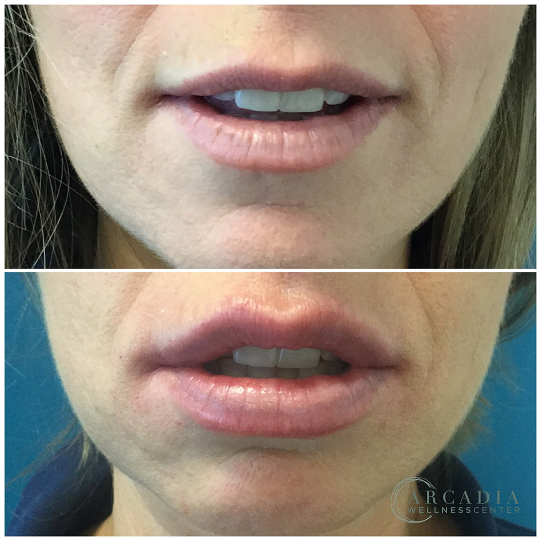 before after image mouth 1464