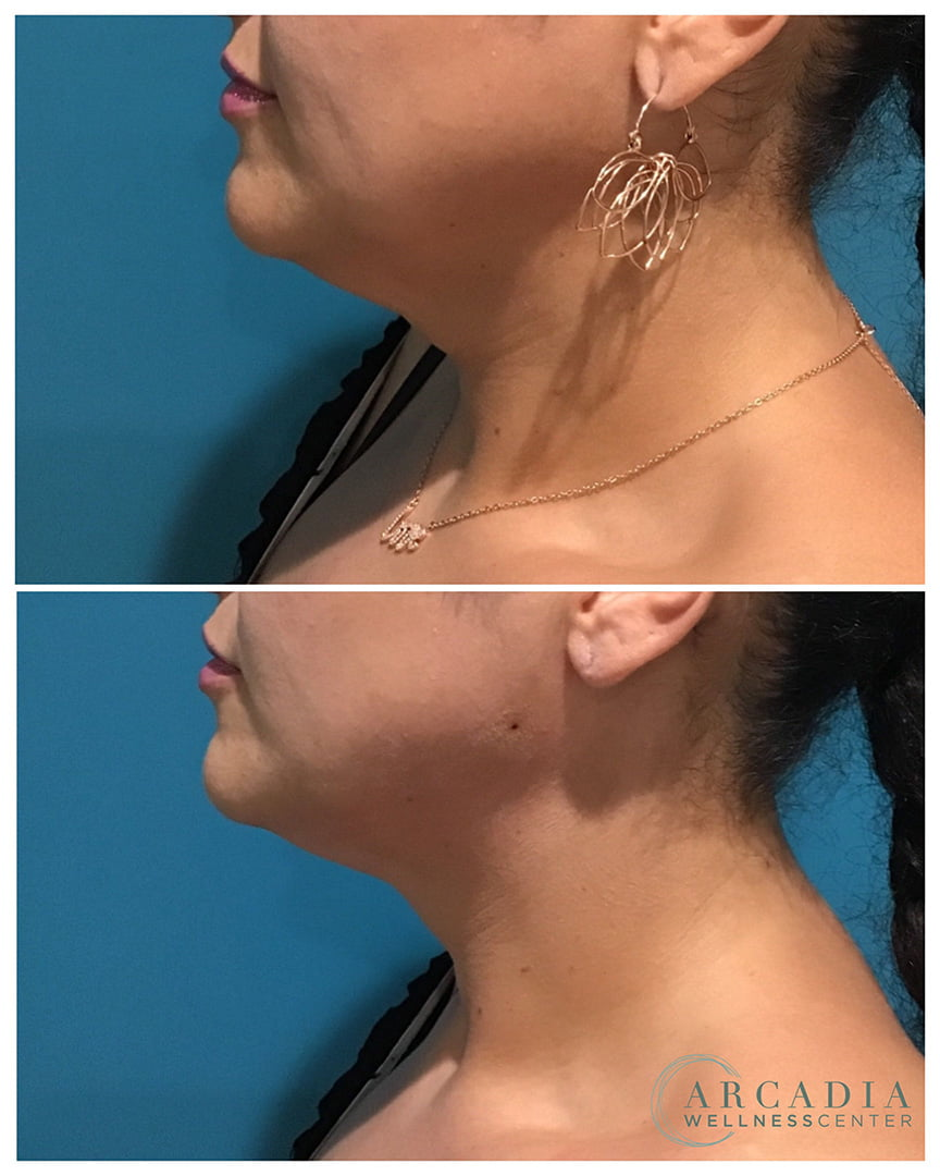 pdo neck lift before after image