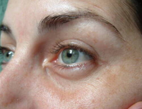 Remove Eye Bags and Look Refreshed with Plasma Pen Treatments